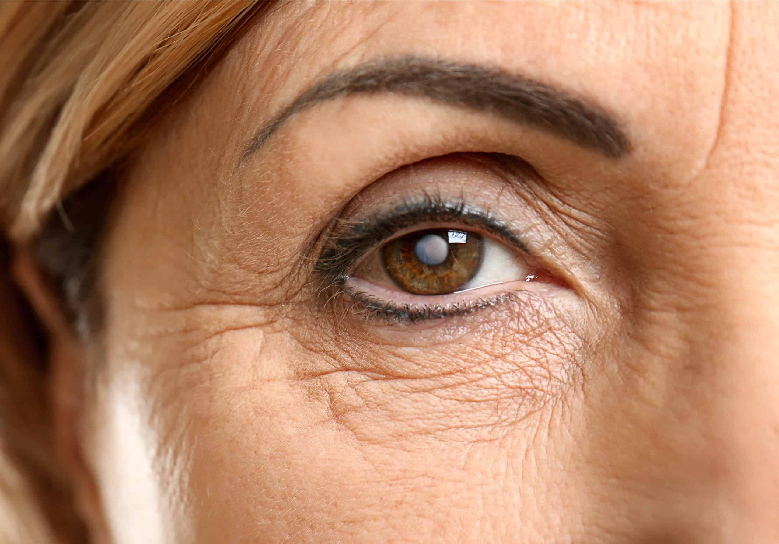 Cataract Surgery in Miami